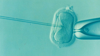 Ovuli procreazione assistita